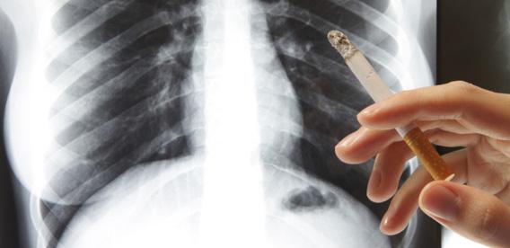 Respiratory Damage